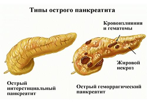 разновидности заболевания