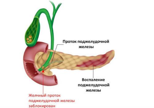воспаленный внутренний орган