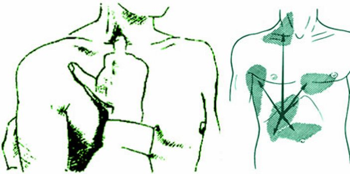 местоположение точки проверки френикус симптома