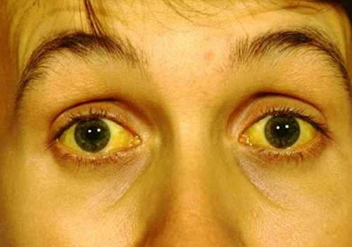 пожелтение кожных покровов и глаз