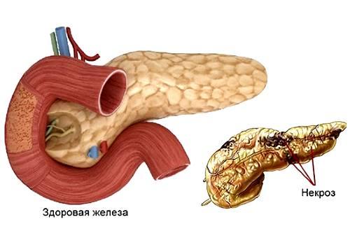 здоровая и больная железа