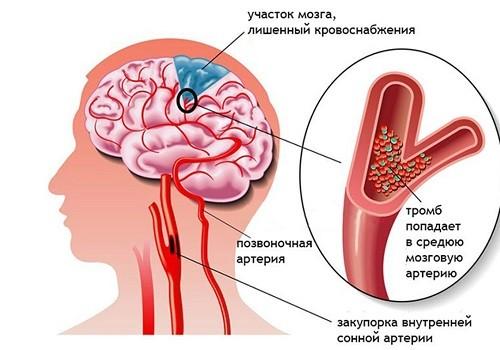 тромб в головном мозге
