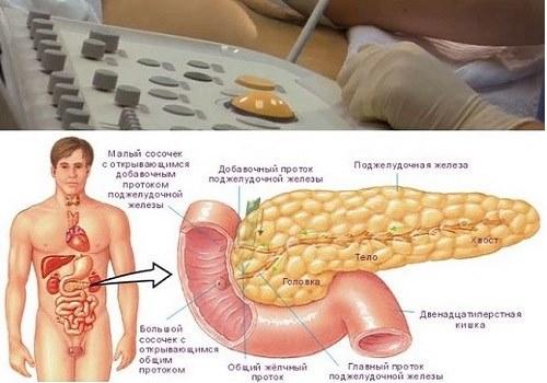 Липатоз поджелудочной железы