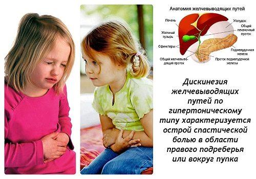 Дискинезии у детей