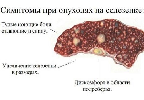 Симптомы при болях в селезенке