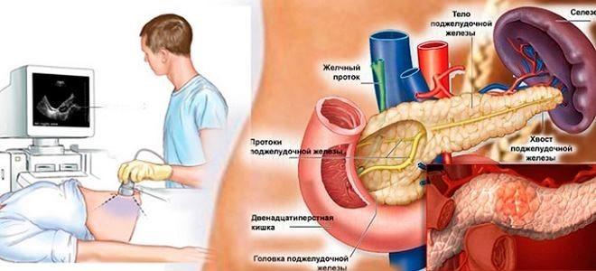 Причины увеличенного лимфоузла поджелудочной железы