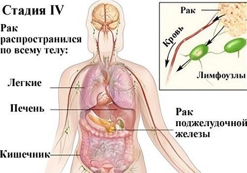 распространение рака