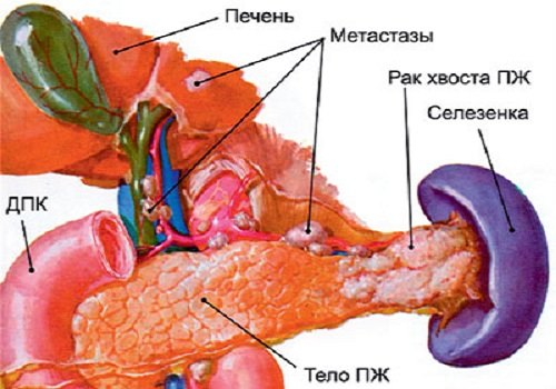 Рак хвоста ПЖ
