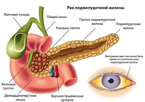 Область поражения раком ПЖ