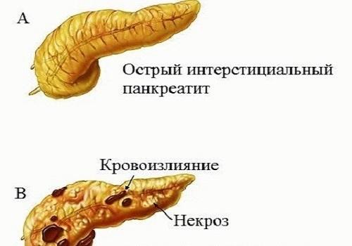 Интерстициальный панкреатит