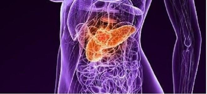 Методы профилактики рака поджелудочной железы