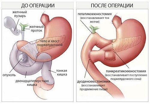 Операция Уиппла