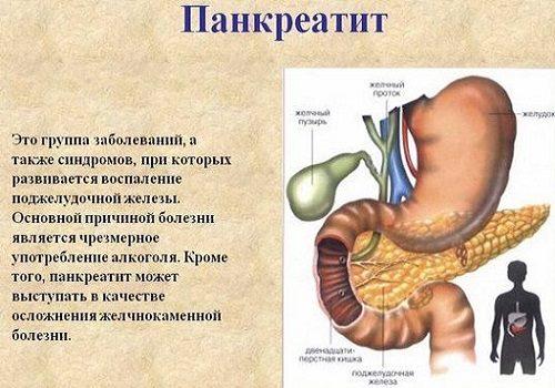 определение панкреатита