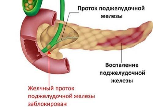 Воспаление ПЖ