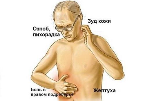 Признаки онкологии ПЖ