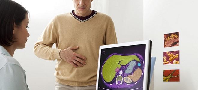Симптоматика панкреатита у мужчин