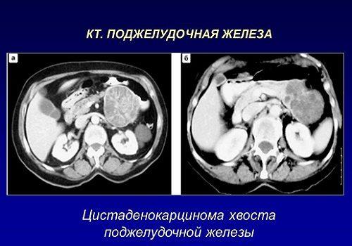 Цистаденокарцинома