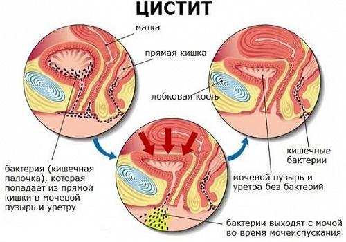 Дюспаталин синдром отмены